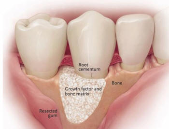 Periodontal Disease Treatment Example