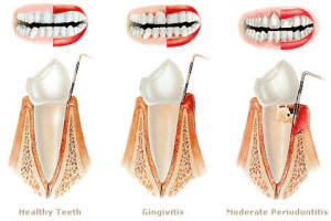 Healthy teeth vs Gingivitis and Periodontitis