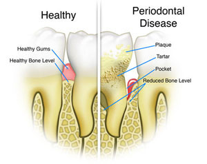 Periodontal Disease: plaque, tartar, pockets or reduced bone levels