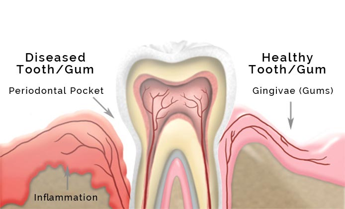 Gum Disease Illustration