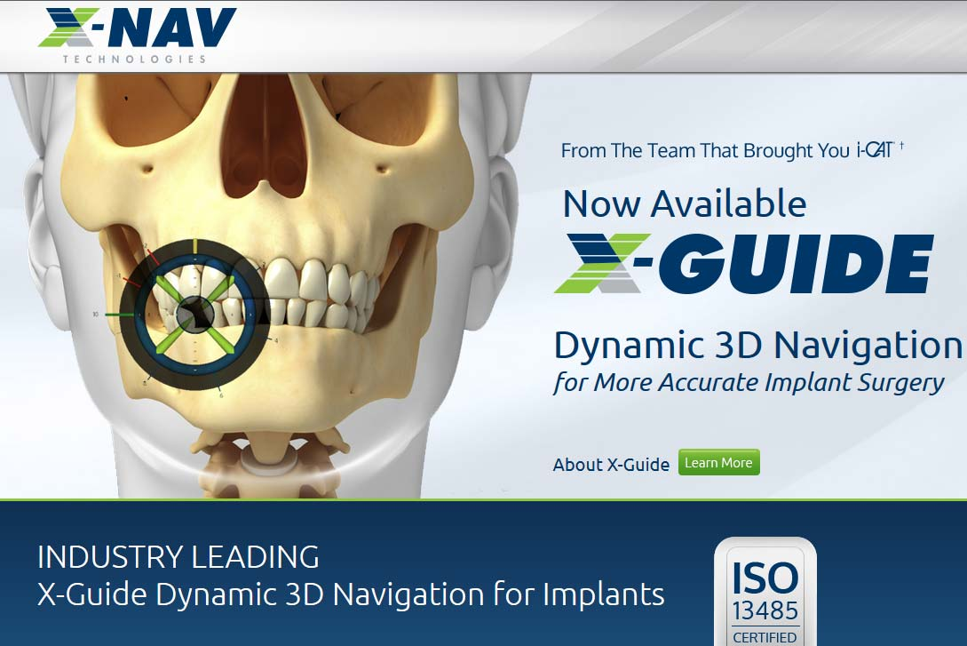 X-Guide Dynamic 3D Navigation for More Accurate Implant Surgery